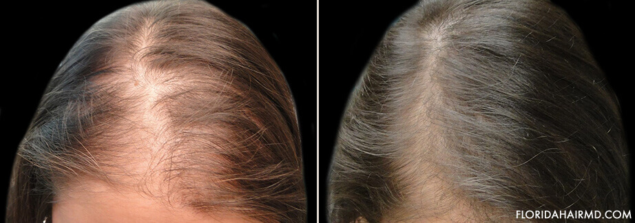 Stem Cell Hair Restoration Treatment Before And After
