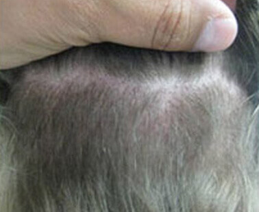 FUE Results