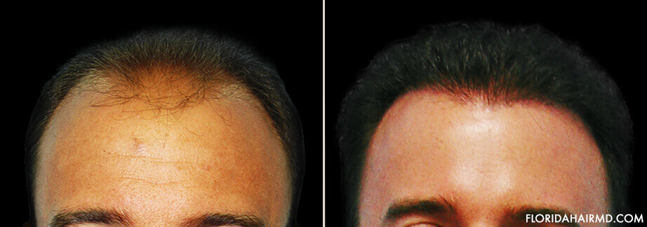 Hair Restoration Results